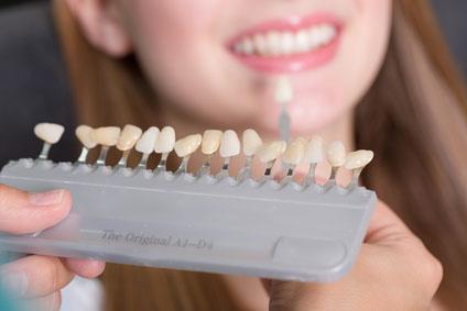 Zahnfarbberatung, Zahnfarbe für eine Krone vergleichen